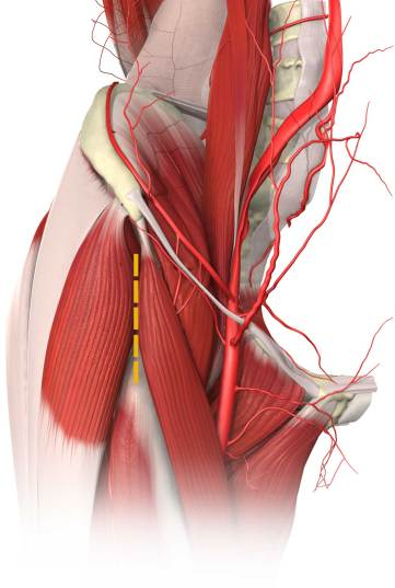 Approccio anteriore all'anca
