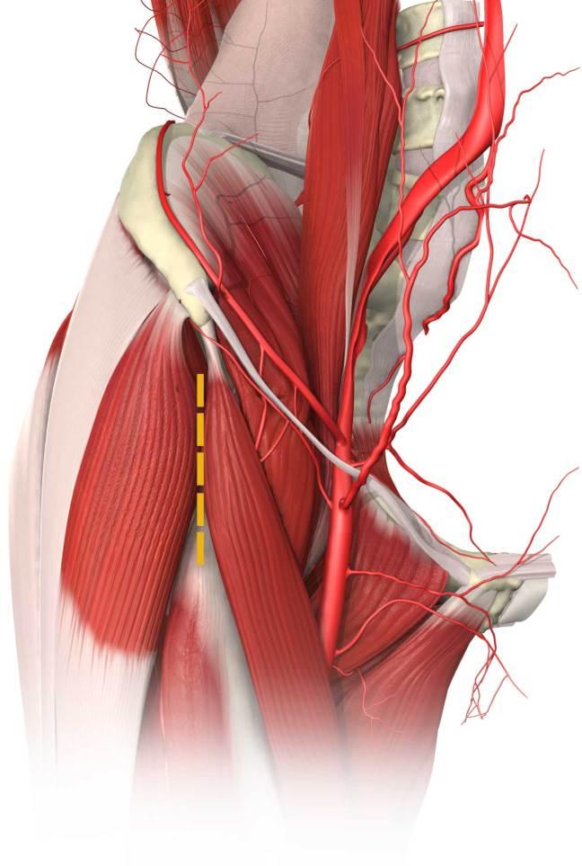 DA_Muscle_Hip-5116a1e46bf92b1043c0d1ceef075433a51e4c56171e3ee0d6db42f523c9a37c-2