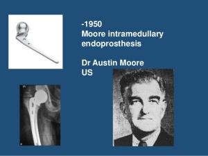 evolution-of-hip-prosthesis-8-638