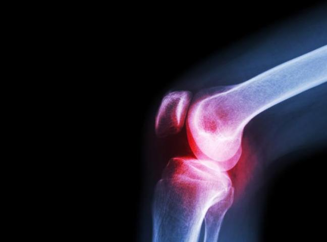 an-xray-of-knee-osteoarthritis