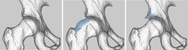 In azzurro le lesioni femoro-acetabolari da impingment